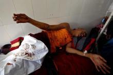 Un monje budista herido en la carga de la policía birmana. | Efe